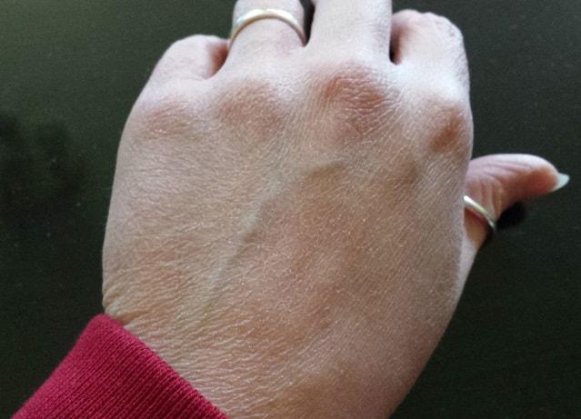 Что делать, если очень сухие руки?