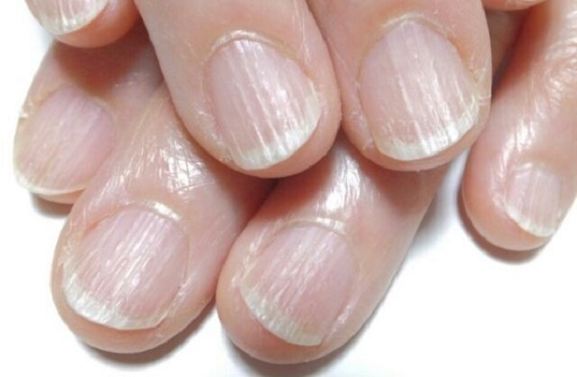 Знаете о чем говорят ваши ногти на руках?
